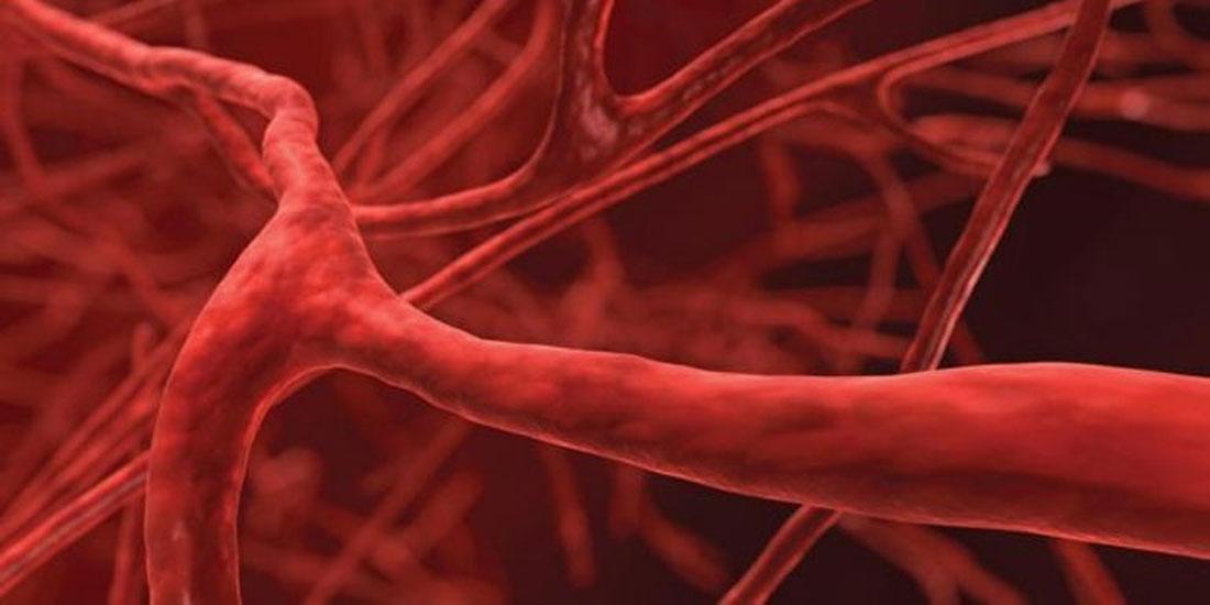 Δημιουργήθηκαν για πρώτη φορά στο εργαστήριο τέλεια ανθρώπινα αιμοφόρα αγγεία