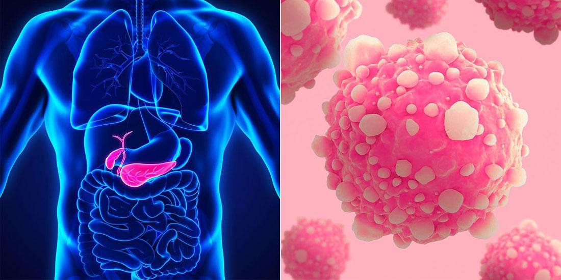 Έγκαιρη και ακριβής διάγνωση του καρκίνου του παγκρέατος: καθοδηγητικές γραμμές στα κέντρα χειρουργικής παγκρέατος των ΗΠΑ