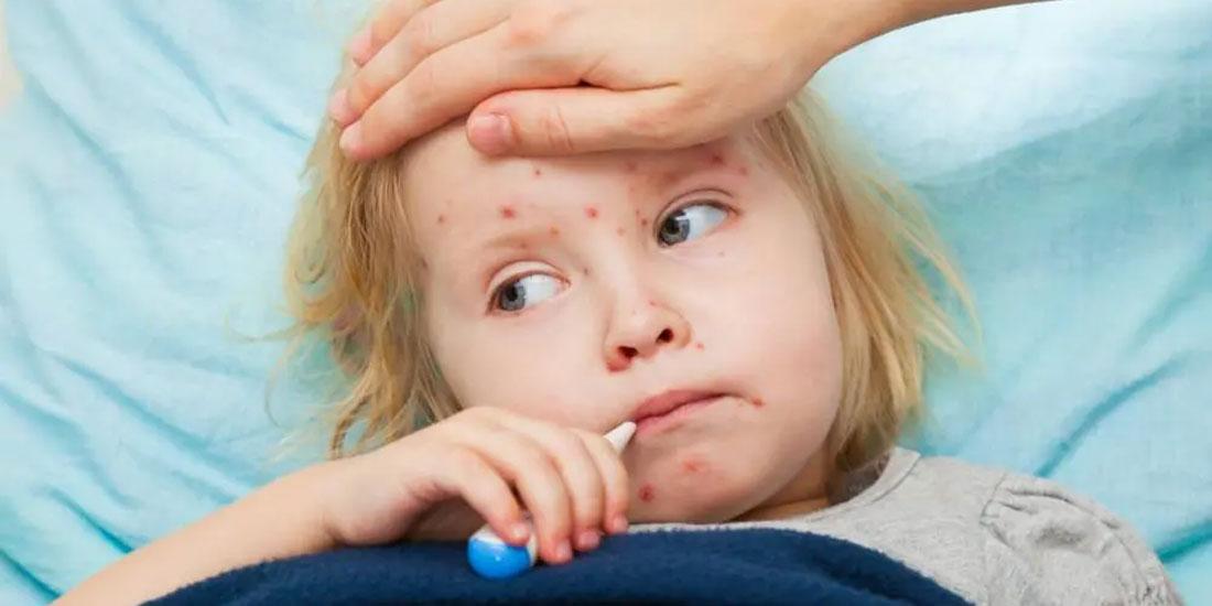 Συναγερμό προκαλεί στη UNICEF η αναζωπύρωση των επιδημιών ιλαράς σε παγκόσμιο επίπεδο