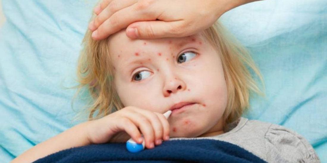 Έκρηξη ιλαράς στη Νέα Υόρκη: Απαγορεύεται η πρόσβαση μη εμβολιασμένων παιδιών σε δημόσιους χώρους