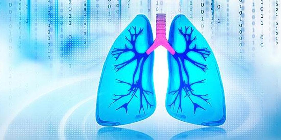 Ευρωπαϊκή έγκριση συνδυαστικής θεραπείας πρώτης γραμμής για ασθενείς με συγκεκριμένο τύπο μεταστατικού καρκίνου του πνεύμονα
