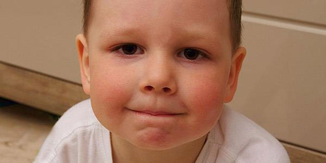 Θετικά αποτελέσματα θεραπείας σε παιδιά με Σοβαρή Ατοπική Δερματίτιδα