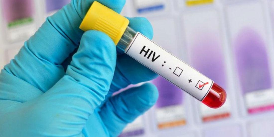 Συνάντηση εργασίας στο υπ. Υγείας για τα επείγοντα ζητήματα της εθνικής απόκρισης στην επιδημία HIV