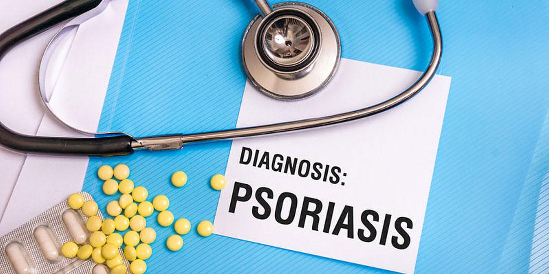 Η πρώτη πανελλήνια πολυκεντρική μελέτη της GENESIS Pharma  για την απρεμιλάστη, επιβεβαιώνει τη θεραπευτική αξία του φαρμάκου,  σε ασθενείς της καθημερινής κλινικής πράξης με μέτρια ψωρίαση