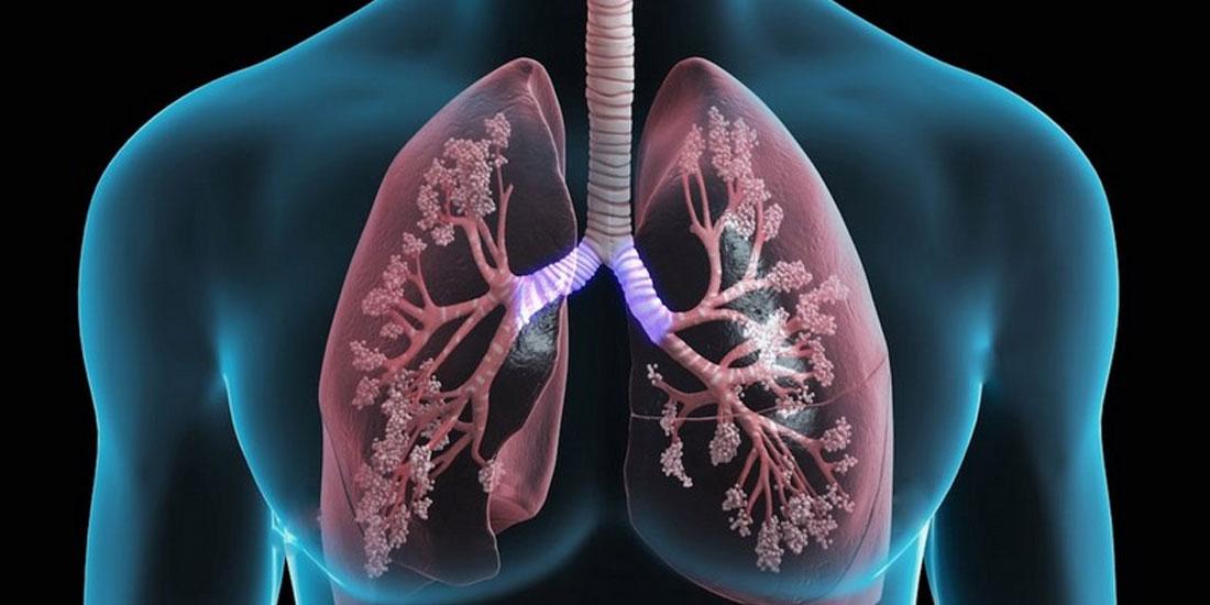 Παρουσίαση του Παγκόσμιου Χάρτη Ασθενών για τη Σπάνια νόσο της Πνευμονικής Αρτηριακής Υπέρτασης