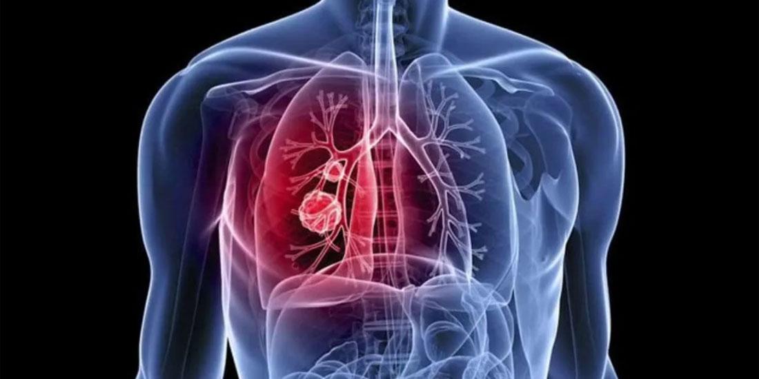 Εξαιρετικά σημαντική η πρώιμη διάγνωση στον καρκίνο του πνεύμονα