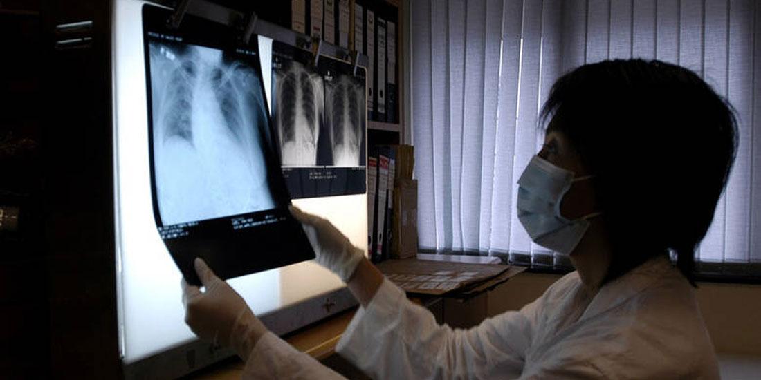 Επιδημία πνευμονίας στην Κίνα: Πιθανότατα πρόκειται για νέο ιό αποφαίνεται ο ΠΟΥ