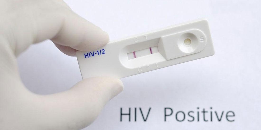 Σκωτία: Rapid tests για τον HIV χρησιμοποιούνται κατά της χειρότερης έξαρσης του ιού τις τελευταίες δεκαετίες