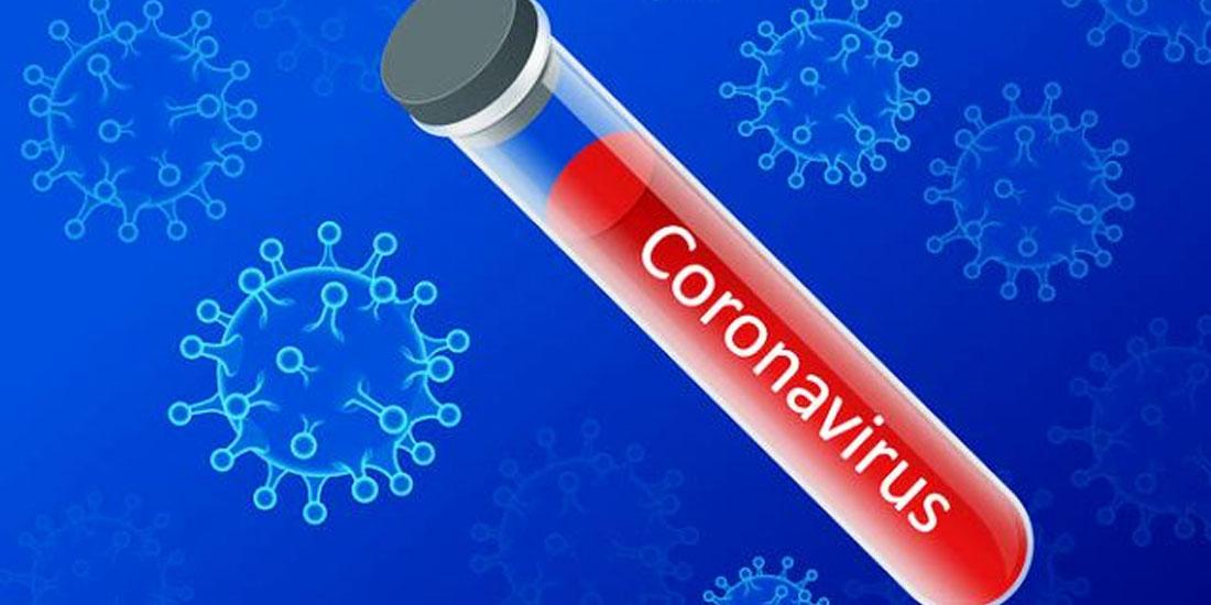 Προφυλάξεις κοινού για τo κορωναϊό Covid 19