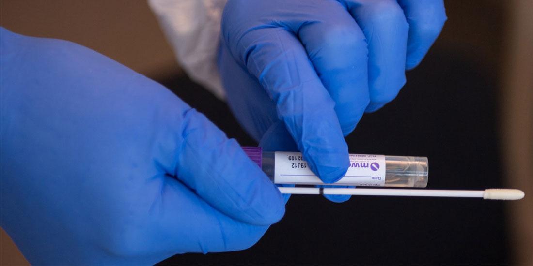 Ουρανία Τσιτσιλώνη: Η «σάρωση» του πληθυσμού με τεστ αντισωμάτων θα εξασφαλίσει υψηλό επίπεδο ασφάλειας στη δημόσια υγεία