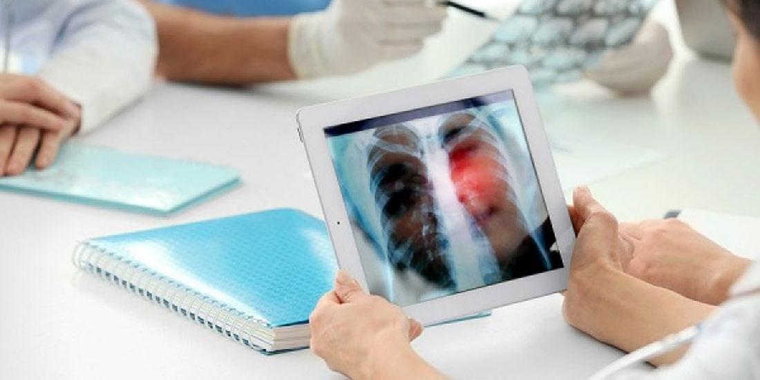 Σε διαδικασία Ταχείας Αδειοδότησης, η συνδυαστική θεραπεία για την αντιμετώπιση πρώτης γραμμής καρκίνου του πνεύμονα