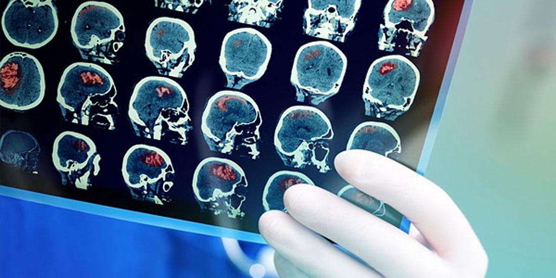 COVID-19 & κατευθυντήριες οδηγίες την υπερηχογραφική διερεύνηση ασθενών με Αγγειακό Εγκεφαλικό Επεισόδιο
