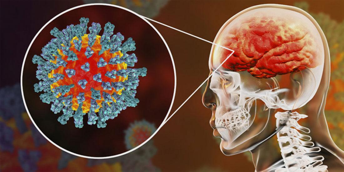 Η σοβαρή Covid-19 μπορεί να βλάψει τον εγκέφαλο
