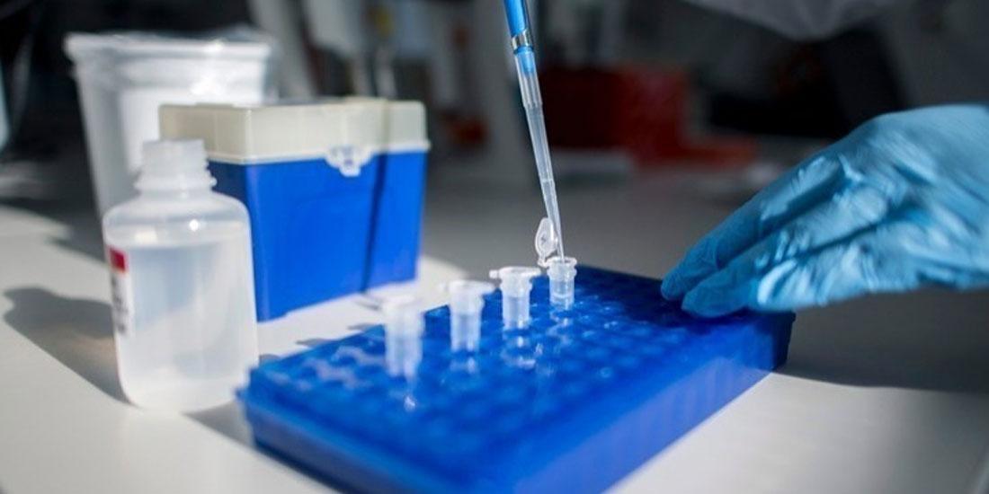 Βρετανία: Χωρίς κατάλληλη αξιολόγηση τα τεστ αντισωμάτων COVID-19 που χρησιμοποιούνται από το NHS, προειδοποιούν οι ειδικοί