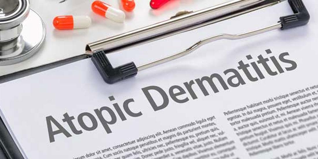 Θετικά αποτελέσματα θεραπείας σε τρεις πιλοτικές δοκιμές, σε ενήλικες ασθενείς, με μέτρια έως σοβαρή ατοπική δερματίτιδα