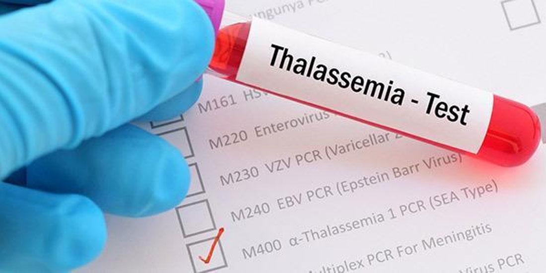 Η Ευρωπαϊκή Επιτροπή εγκρίνει θεραπεία για τη μείωση της ανάγκης τακτικών μεταγγίσεων σε ενήλικους ασθενείς με μυελοδυσπλαστικά σύνδρομα ή β-θαλασσαιμία
