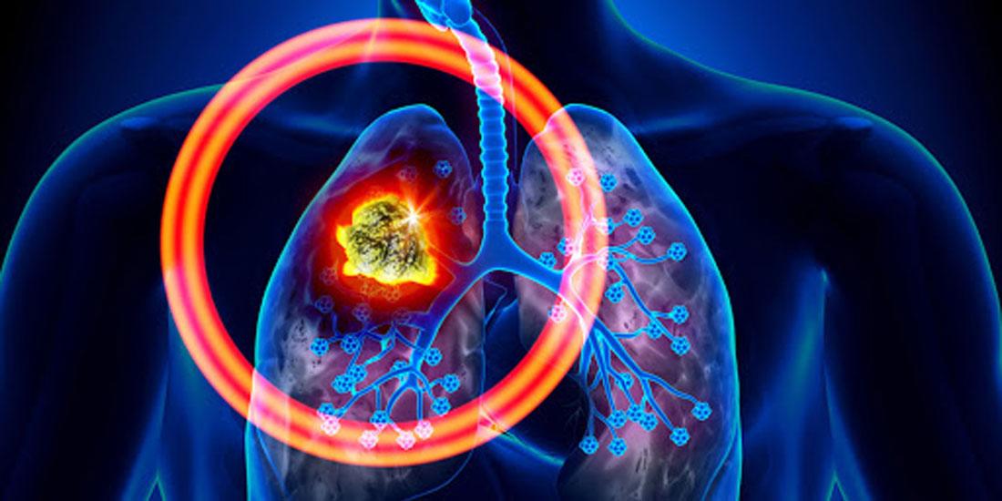 Θετική γνωμοδότηση της CHMP για έγκριση συνδυαστικής θεραπείας με χημειοθεραπεία για το μεταστατικό μη μικροκυτταρικό καρκίνο του πνεύμονα