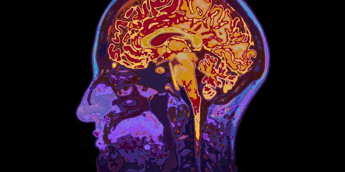 Θρόμβωση Φλεβωδών Κόλπων Εγκεφάλου σε Ασθενείς με νόσο COVID-19