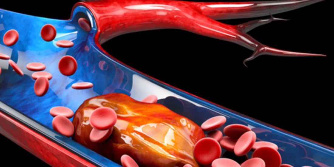 Πρόληψη και θεραπευτική αντιμετώπιση του αυξημένου κινδύνου θρομβώσεων στη νόσο COVID-19
