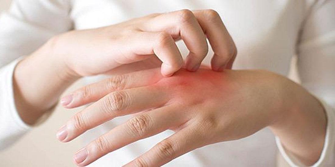 Καινοτόμος θεραπεία για τους ασθενείς με Χρόνια Αυθόρμητη Κνίδωση