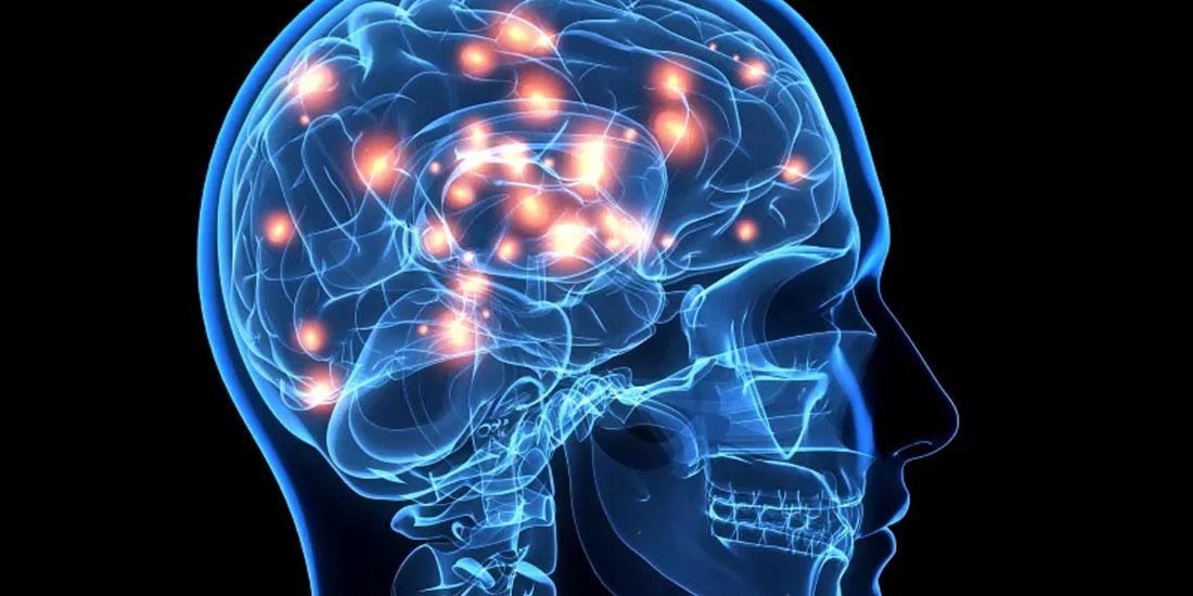 Η επίπτωση της πανδημίας COVID-19 στην οξεία αντιμετώπιση του αγγειακού εγκεφαλικού επεισοδίου