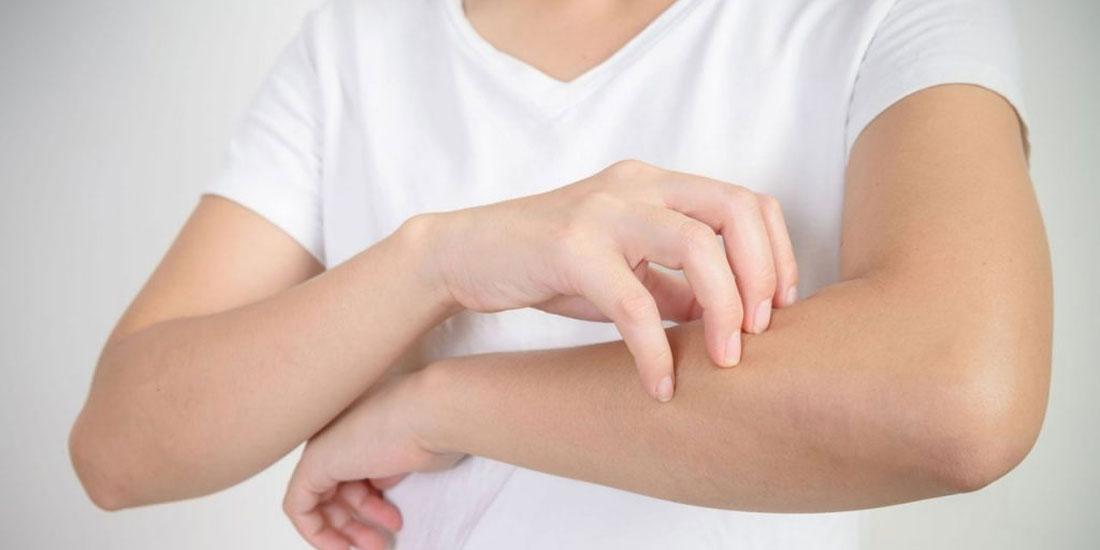 Θετικά αποτελέσματα μελετών για νέα θεραπεία ασθενών με μέτρια ως σοβαρή Ψωρίαση κατά Πλάκας