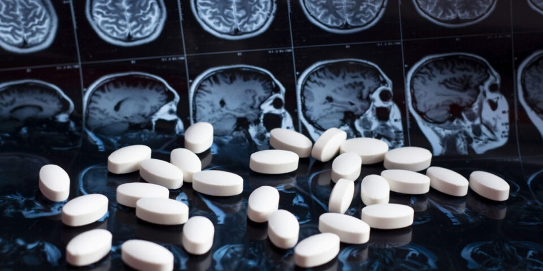 Π. Σακκά: Πολύ θετική εξέλιξη όχι όμως πανάκεια το νέο φάρμακο που ενέκρινε ο FDA για τη νόσο Αλτσχάϊμερ