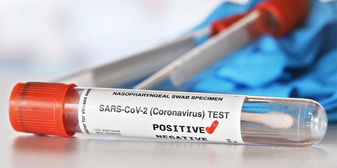 Ο ημερήσιος απολογισμός του Sars-CoV-2 στον κόσμο