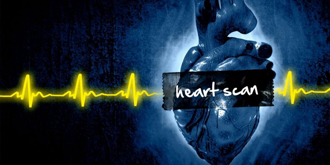 Καρδιακό scanning: Νέα εξέταση που προσφέρει τη δυνατότητα μη επεμβατικής διάγνωσης