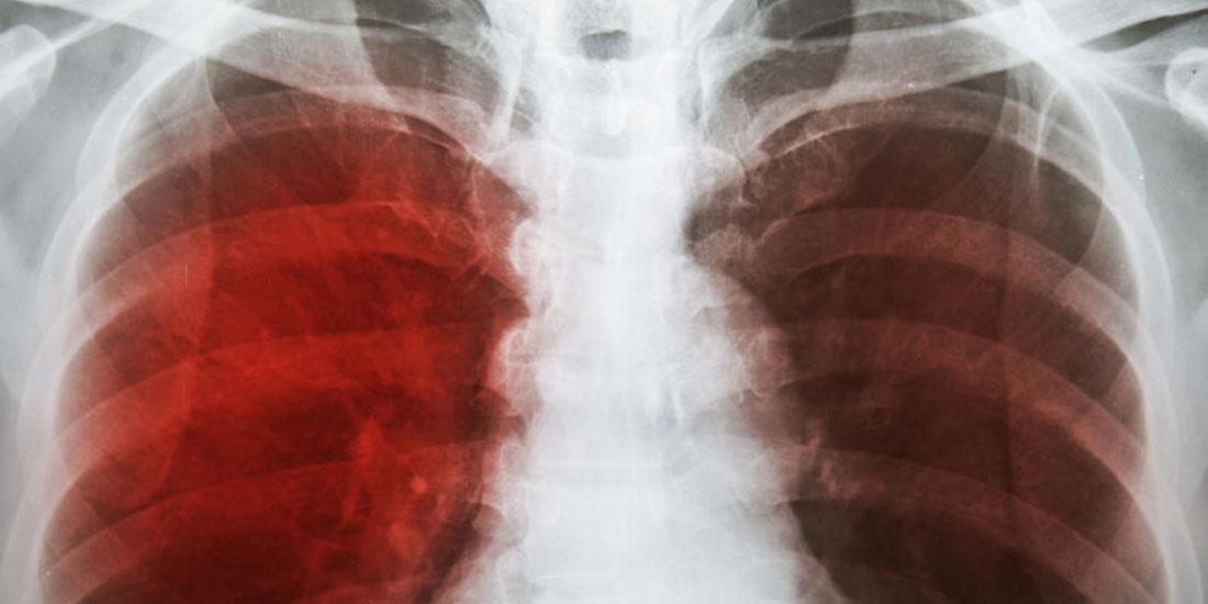 Κοινός στόχος να τεθεί στην «υγειονομική λήθη» η φυματίωση