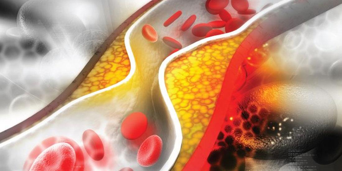 Evolocumab: Έγκριση από την Επιτροπή CHMP για πρόληψη καρδιακών και αγγειακών εγκεφαλικών επεισοδίων
