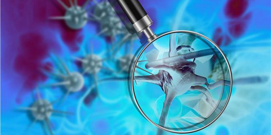 Πρωτότυπο δερματικό εμφύτευμα ανιχνεύει εγκαίρως 4 τύπους καρκίνου