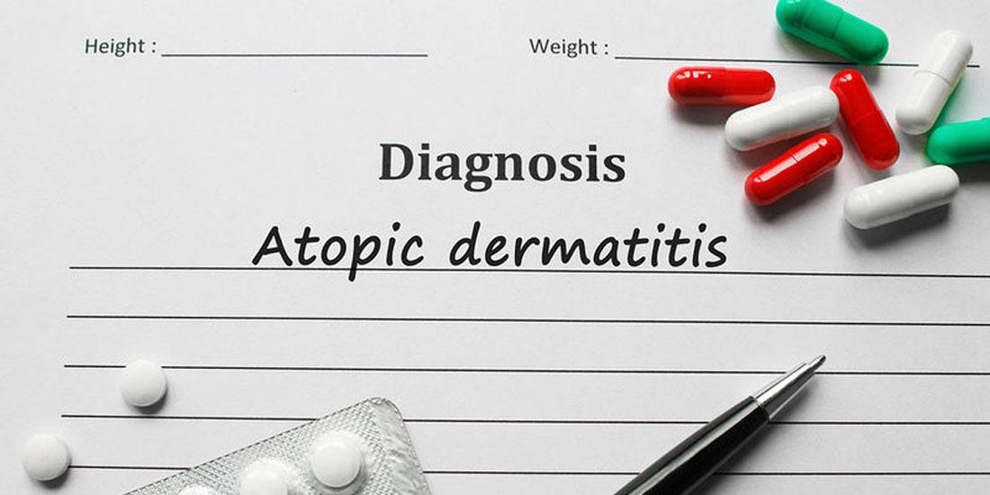 Θετικά αποτελέσματα θεραπείας σε εφήβους με ανεπαρκώς ελεγχόμενη μέτρια έως σοβαρή ατοπική δερματίτιδα σε μελέτη Φάσης 3