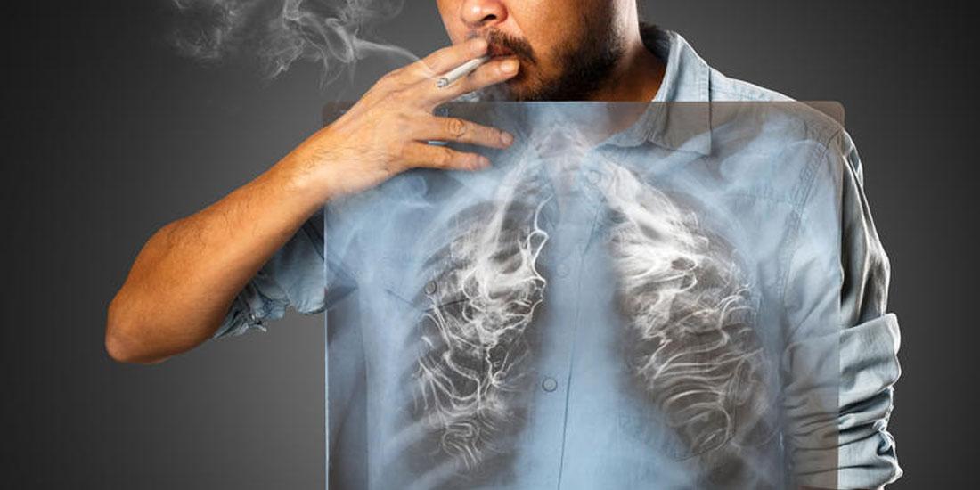 Το κάπνισμα σκοτώνει περισσοτέρους από 15.000 ανθρώπους ετησίως στην Ελλάδα