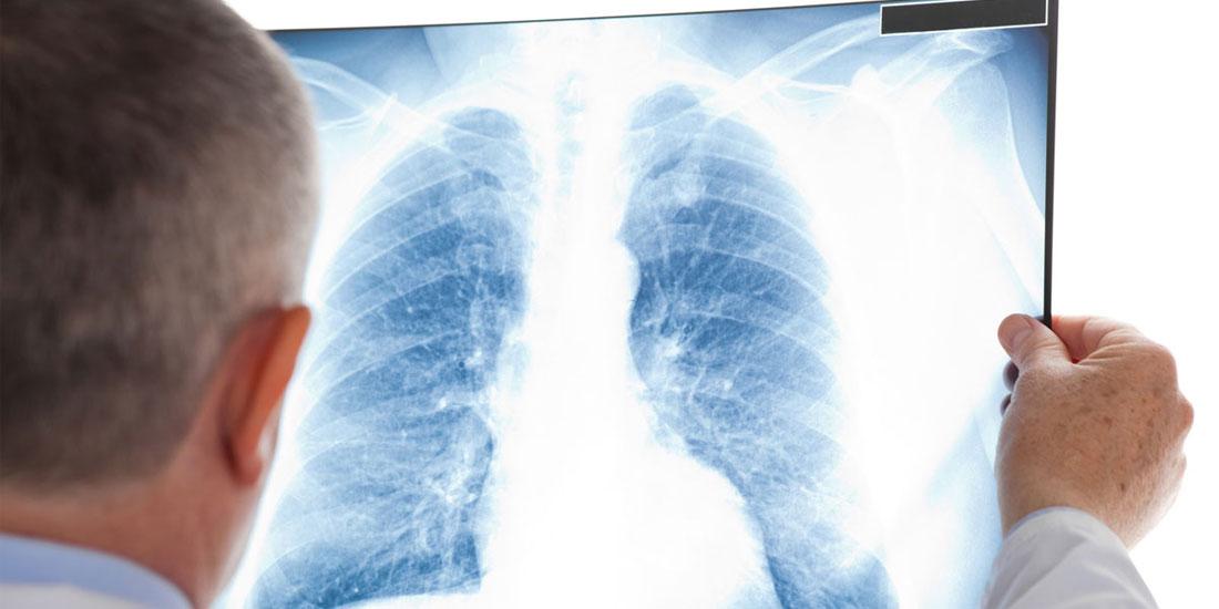 Σε εξέλιξη οι εργασίες του Διεθνούς Συνεδρίου Πνευμονολογίας - Οι νέες εξελίξεις στην αντιμετώπιση πνευμονοπαθειών