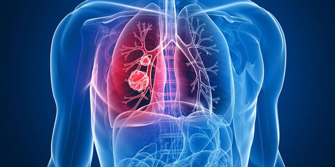Θετική επίδραση ανοσοθεραπείας στη συνολική επιβίωση ασθενών με μη μικροκυτταρικό καρκίνο του πνεύμονα