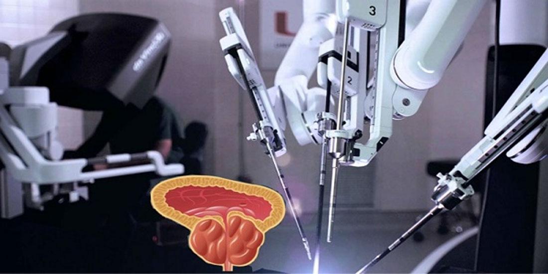 Ανεβαίνει ο πήχης στην αντιμετώπιση καρκίνου προστάτη με τη ρομποτική μέθοδο