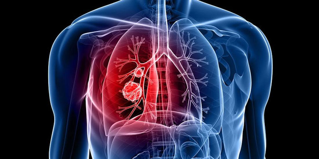 Σημαντικά οφέλη θεραπείας για ασθενείς με συγκεκριμένους μεταστατικούς τύπους καρκίνου του πνεύμονα