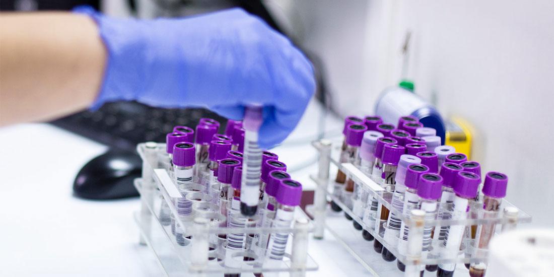 Ενθαρρυντικές οι διαπιστώσεις μελέτης για ασθενείς με προχωρημένο επιθετικό λέμφωμα