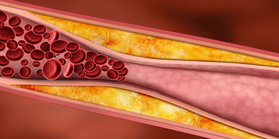Αναστολείς του ενζύμου PCSK9: Πότε συνιστώνται στην υπολιπιδαιμική αγωγή