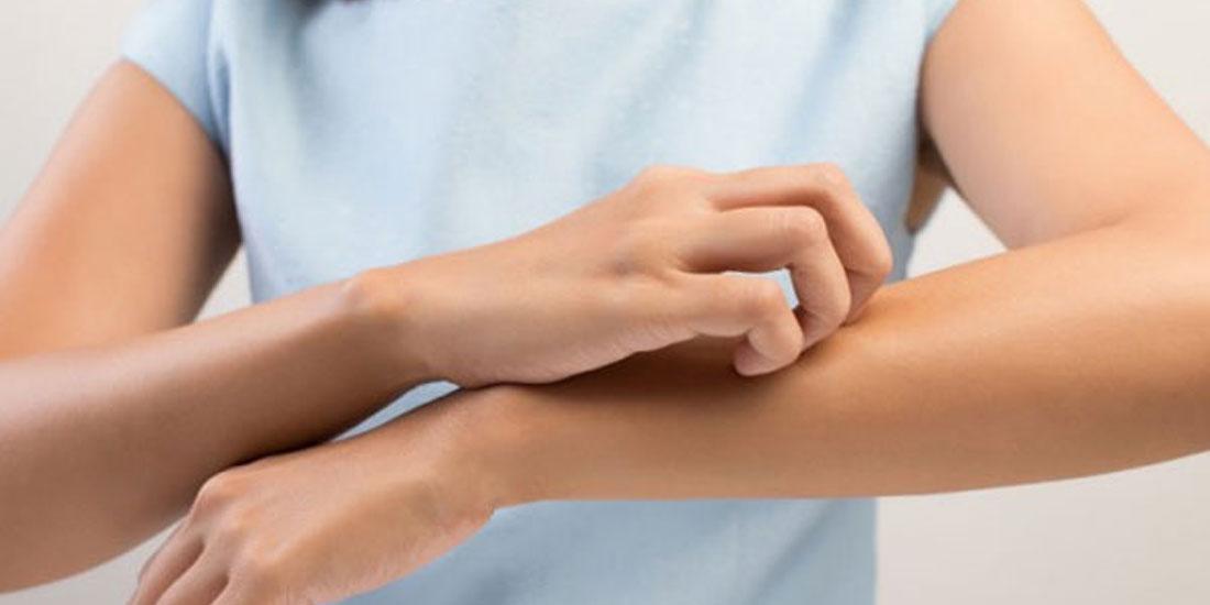 14 Σεπτεμβρίου 2018: Σήμερα η πρώτη Παγκόσμια Ημέρα Ατοπικής Δερματίτιδας