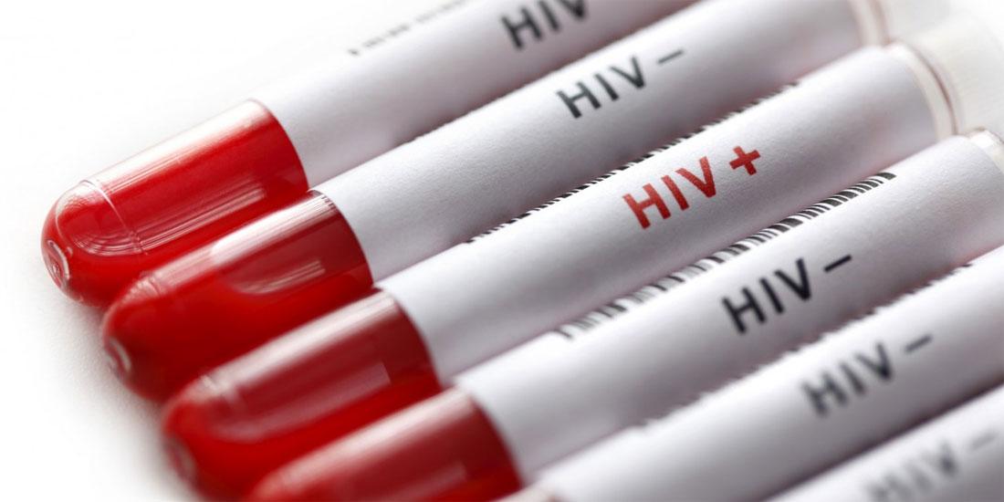 Πάνω από 17 εκατομμύρια άτομα ζουν με τον HIV