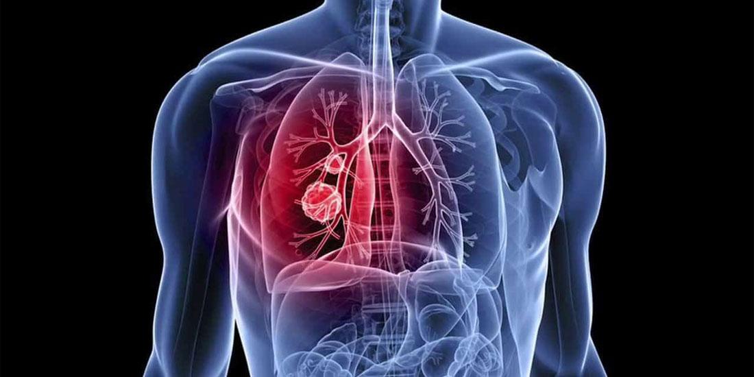 Νεότερα δεδομένα για το alectinib* ως θεραπεία 1ης γραμμής σε ALK-θετικό καρκίνο του πνεύμονα