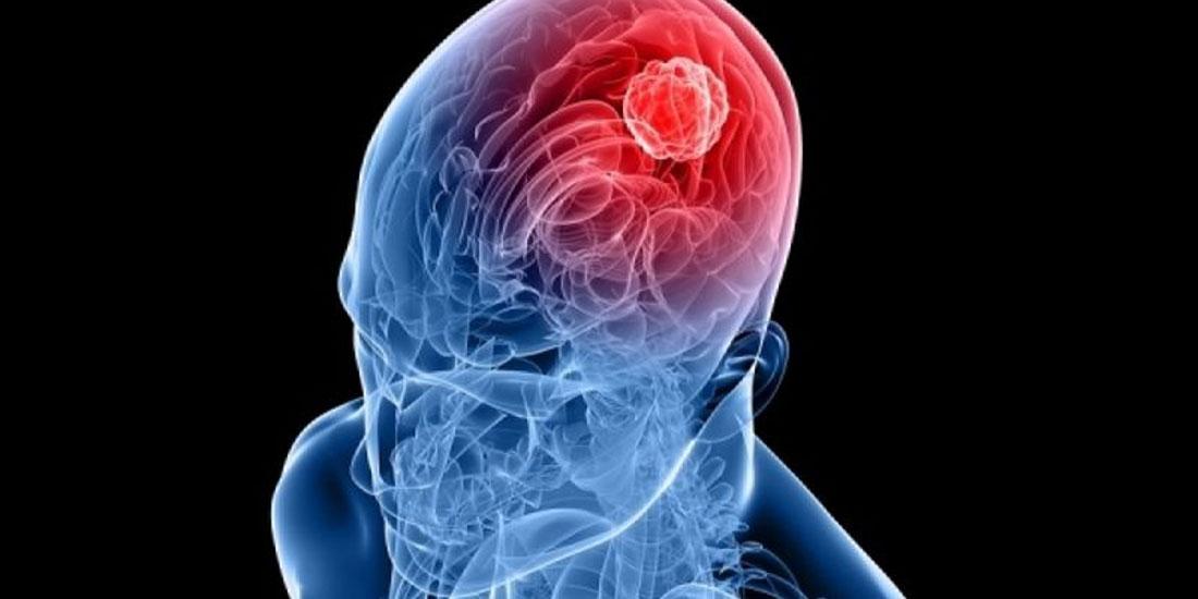 Οι γυναίκες αντιδρούν πιο καλά στη θεραπεία για καρκίνο του εγκεφάλου από ό,τι οι άνδρες
